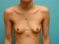 Dr. Serra Surgical Before & After